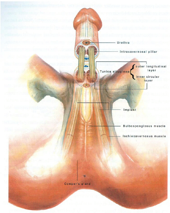 Suggest you male penis implant